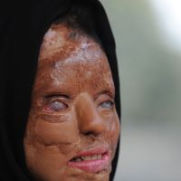 India acid attack victim fights back
