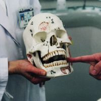 Toothy grin: This dental training skull has more teeth than a human mouth, and is used to indicate connections between the teeth and nerve centers.   KEVIN RAFFERTY PHOTOS