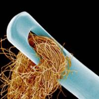 A haystack in a needle: Magnified 25 times by a scanning electron microscope, the spaghettilike fibers of a cotton string clump in the eye of a needle. | COURTESY OF SUSUMU NISHINAGA