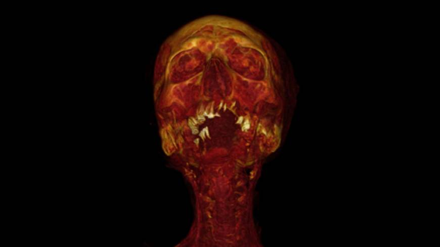 The human condition: A CT reconstruction of the mummy Hatiay, a male scribe who died at age 40 to 50 during the New Kingdom (1570-1293 B.C.), revealed calcification of the arteries. | AFP-JIJI