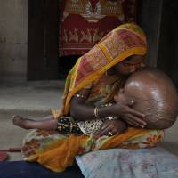 Special child: Fatima Khatun kisses the head of her 15-month-old daughter, Roona Begum, in their hut in Jirania village, Tripura state, on April 13. | AFP-JIJI