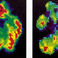 Killer mind: Scans of a normal brain (left) and that of murderer Antonio Bustamante. He was spared the death penalty after a jury was shown these photos. | THE OBSERVER