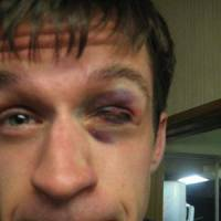 Eyesore: Andrew Carter sports a shiner after his first session at the Yoshinkan Honbu Dojo in Tokyo last year. | TIES BEEK