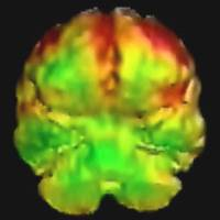 Insane in the brain: These PET scans suggest murderer Donta Page had low glucose metabolism in the front of his brain. | THE WASHINGTON POST