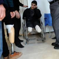 Healing process: An injured Syrian man waits for new prosthetic limbs Saturday in the border town of Reyhanli, Turkey. | AFP-JIJI