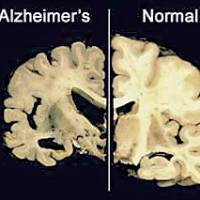 After, before: This undated image by Merck & Co. compares cross sections of a brain damaged by advanced Alzheimer's disease with a normal brain (right). | MERCK&CO./AP