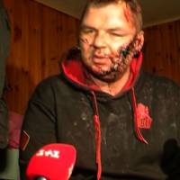 Out for blood: A screen grab taken on Friday from Ukranian Channel 5 television shows opposition activist Dmytro Bulatov being interviewed in Kiev. Bulatov, who went missing last week, said he was held captive, blindfolded and tortured for days before his captors dumped him in a forest. He was found severely beaten, appearing to have suffered multiple knife wounds. | AFP-JIJI