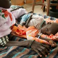A malnourished child is treated in a clinic set up by Doctors without Borders (Medecins Sans Frontieres) in Jamam, Upper Nile State, South Sudan on June 20, 2012. | AFP-JIJI