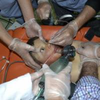 A Syrian boy is treated Monday after what activists say was a chlorine gas attack on the town of Telminnes. | REUTERS