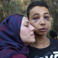 Tariq Abu Khdeir, a Palestinian-American teenager who was allegedly beaten while in police custody, is hugged by his mother following a hearing at Jerusalem Magistrates Court on Sunday. | AFP-JIJI