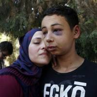 Tariq Khdeir is greeted by his mother after being released from jail in Jerusalem Sunday. Tariq Khdeir from Tampa, Florida, is a cousin of Mohammed Abu Khudeir, 16, whose abduction and killing in Jerusalem on Wednesday sparked violent protests and calls from Palestinians for a new uprising against Israel. | REUTERS