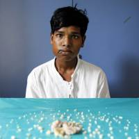 Ashik Gavai, 17, sits near 232 teethlike structures removed from his jaw after underwent surgery in Mumbai last Monday. Dental surgeons say they removed 232 of the structures from the mouth of the teenage boy with a rare medical condition called complex odontoma. | AP