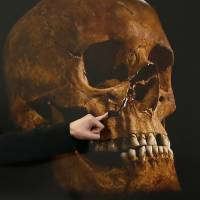 Project osteologist Jo Appleby points out damage to a skull, believed to be that of King Richard III, during a news conference in Leicester, central England, on Feb. 4, 2013. | REUTERS