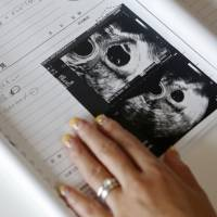 Sayaka Osakabe displays medical records showing ultrasound images of her 7-week old twin babies, in her home in Kawasaki on Sept. 11. | REUTERS