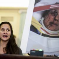 Stephanie Erdman of Florida, who suffered severe injuries in September 2013 when a Takata Corp. air bag exploded in her Honda Civic, testifies before the Senate transportation committee on Capitol Hill in Washington on Wednesday. | BLOOMBERG