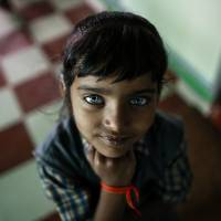 A girl who suffers from hearing and speech disorders poses for the camera at a rehabilitation center for children who were born with mental and physical disabilities, in Bhopal, India, on Nov. 11. | REUTERS