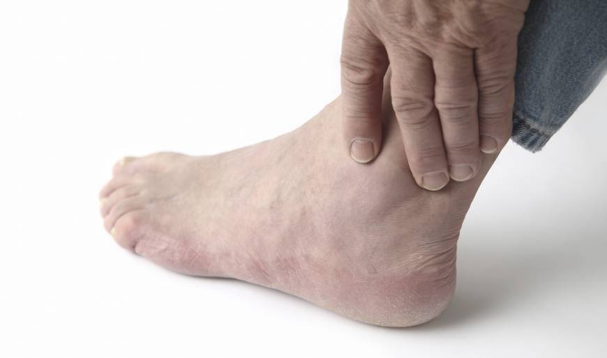 Japanese scientists find a genetic basis for gout