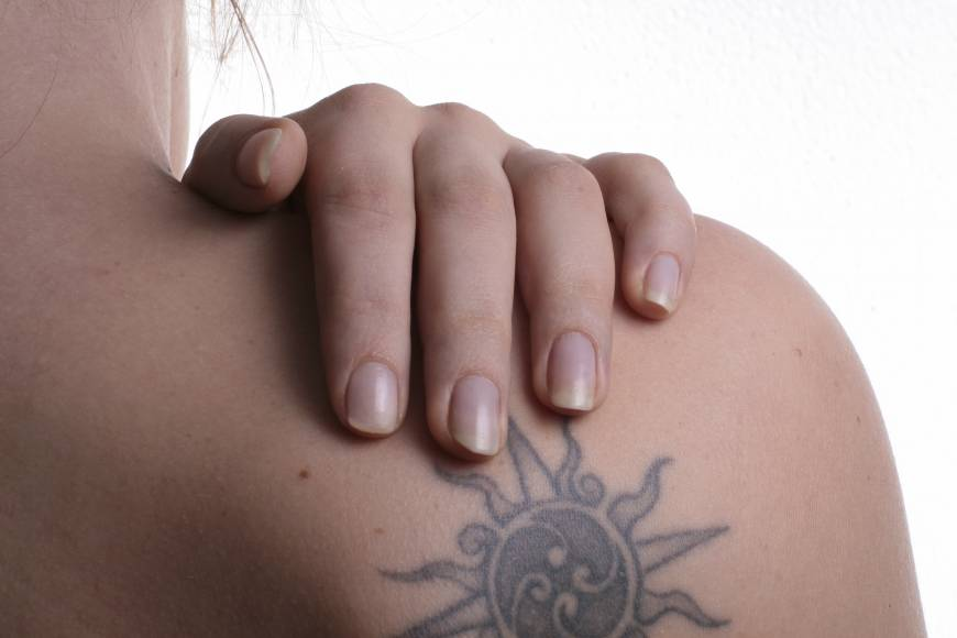 Hotel group inks trial covering bathers' tattoos with stickers