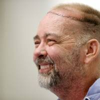 Transplant patient Jim Boysen smiles after a news conference at Houston Methodist Hospital on Thursday. Texas doctors say they have done the world's first partial skull and scalp transplant to help Boysen with a large head wound from cancer treatment. | AP