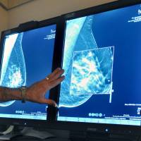 American Cancer Society now urges fewer mammograms and later age to start screening