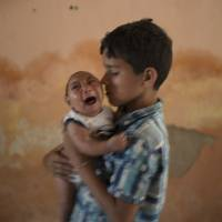 10-year-old Elison nurses his 2-month-old brother, Jose Wesley, who was born with microcephaly, at their house in Poco Fundo, Pernambuco state, Brazil, on Dec. 23. The U.S. Centers for Disease Control and Prevention said Wednesday that it has found the strongest evidence so far of a possible link between a mosquito-borne virus and a surge of such birth defects in Brazil. | AP