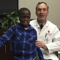Congolese boy, 8, who lost lips in deadly chimp attack to get rare reconstruction surgeries in New York