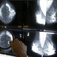 Screen every two years for breast cancer starting at age 50, U.S. guidelines urge