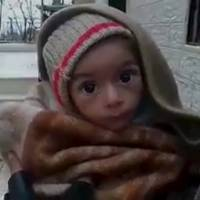 A toddler is held up to the camera in this still image taken from video said to be shot in Madaya on Jan. 5. Warnings of widespread starvation are growing as pro-government forces besiege an opposition-held town in Syria and winter bites, darkening the already bleak outlook for peace talks the United Nations hopes to convene this month. | HANDOUT VIA SOCIAL MEDIA WEBSITE / REUTERS