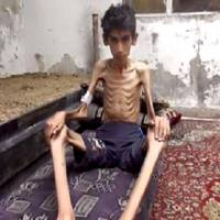 This undated photo posted on the Local Revolutionary Council in Madaya, which has been verified and is consistent with other AP reporting, shows a starving boy in Madaya, Syria. The Syrian government has agreed to allow humanitarian assistance into three beleaguered villages following reports of malnutrition in the area, a U.N. official said Thursday. | LOCAL REVOLUTIONARY COUNCIL IN MADAYA VIA AP