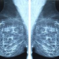 Tohoku University researchers report making progress in raising the accuracy rate of breast cancer detection by combining mammography with ultrasound. | ISTOCK