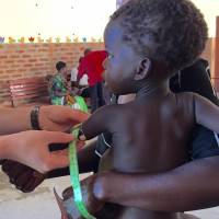 Researchers measure a boy's growth in Malawi as part of a study on the link between gut microbes and malnutrition. | AP