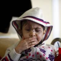 Five-year old Sheima, who lost both eyes when hit by a stray bullet in Syria, sits in her bed Tuesday in a clinic in Kilis, Turkey. | REUTERS