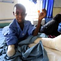 Twelve-year-old Isa Lawan's right hand had to be amputated after he was injured in a Boko Haram attack on Tuesday in Maiduguri, Nigeria. | AFP-JIJI