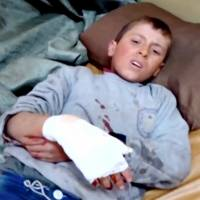 A boy lies on a bed with an injured hand after what is said to be a missile attack on a hospital in Azaz, Aleppo, Syria, Monday in this still image taken from a video on a social media website. Seven Russian missiles struck a hospital in the northern Syrian town of Azaz on Monday, a Turkish security official said, adding the civilian death toll to rise above 14. | REUTERS / SOCIAL MEDIA WEBSITE VIA REUTERS