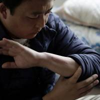 Chinese trainee Zhang Wenkun shows a scar on his arm from a work injury as he is interviewed in Hashima, Gifu Prefecture, on Jan. 14. | BLOOMBERG
