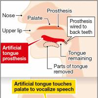 Japanese team invents movable tongue prosthesis to enable speech for cancer victims