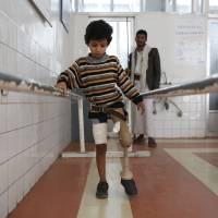 A young boy who lost his leg in the Yemeni civil war uses a prosthetic limb at a government-run rehabilitation center in Sanaa on March 5. | AP