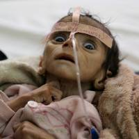 Five-month-old Udai Faisal, who is suffering from acute malnutrition, is seen hospitalized at al-Sabeen Hospital in Sanaa on March 22. He died two days later. | AP