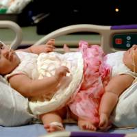 Surgery starts in Texas to separate infant conjoined twins
