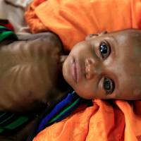 An unidentified severely malnourished Somali refugee child rests inside a ward at the Medecins Sans Frontieres (MSF) hospital at the Dagahale refugee camp in Dadaab, near the Kenya-Somalia border, in Garissa County, Kenya, in 2011.   REUTERS