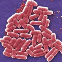 CDC alarmed as U.S. confronts its first superbug resistant to last-resort antibiotic