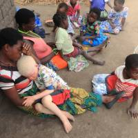 Malawi urged to 'stop burying its head in the sand' as albino abductions, slayings for body parts surges