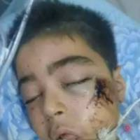 Wounds claim brother of Aleppo boy in haunting photo taken after airstrike