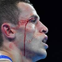 Olympic boxers dealing with cuts after loss of headgear