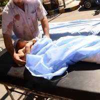 A wounded Syrian child is rushed into a hospital after she was hit by mortar shells that targeted Aleppo's government controlled Aziziyah and Suleimaniyah neighborhoods on Wednesday. | AFP-JIJI