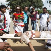 People look at a severely injured man being carried for treatment after a deadly stampede in Bishoftu, south of the Ethiopian capital of Addis Ababa, on Sunday. | AFP-JIJI