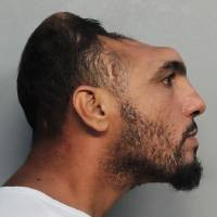 Man with deformed skull charged with arson, attempted murder in Miami
