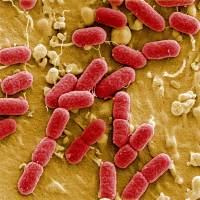 An undated image taken with electronic microscope shows EHEC bacteria (enterohemorrhagic Escherichia coli) in the Helmholtz Center for Infection Research in Brunswick, Germany. | REUTERS