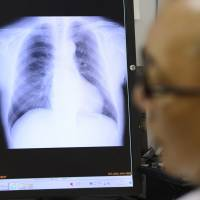 A doctor examines an X-ray image at a hospital in Tokyo. An informal survey by The Japan Times has found that many users of the Japanese health care system view it as affordable and of high quality but rife with impersonal doctors and hard to navigate. | BLOOMBERG