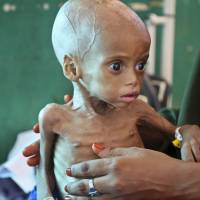 Acutely malnourished Sacdiyo Mohamed, 9 months old, is treated in March at the Banadir Hospital after her mother, Halima Hassan Mohamed, fled the drought in southern Somalia and traveled by car to the capital Mogadishu. Eight of the largest U.S.-based aid groups are joining together in a new campaign to address what the United Nations calls the world's largest humanitarian crisis in more than 70 years. More than 20 million people are at risk of famine in nine African nations and Yemen.   AP